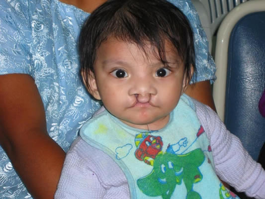 Cleft Lip Patient Stories from Guatemala 2009 Mission
